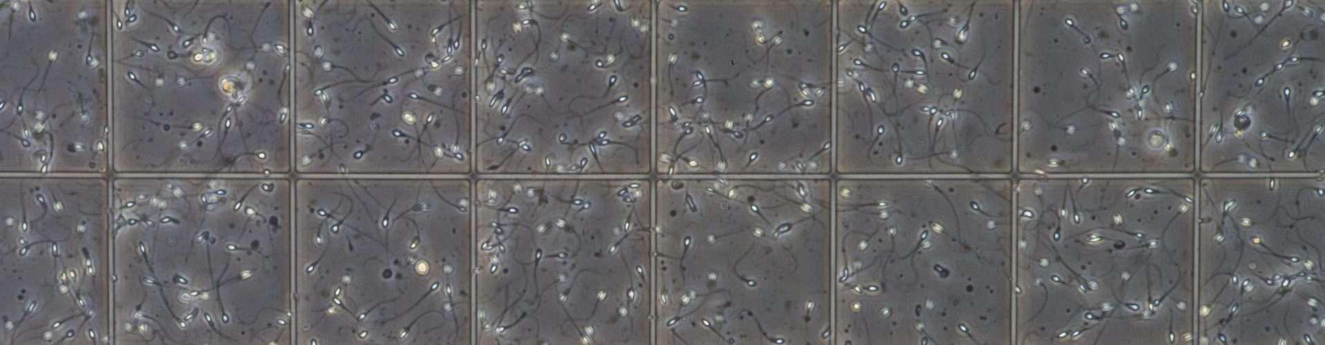 Infertilidad masculina: ¿cómo afecta la soja sobre la calidad del esperma?