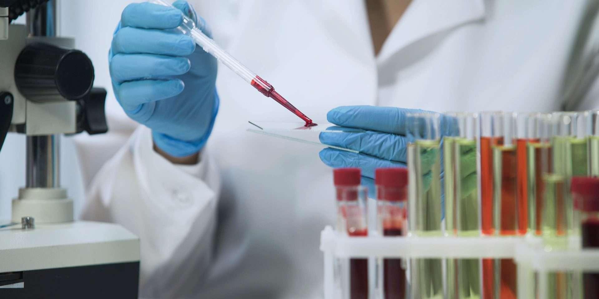 Muestras del Test Prenatal No Invasivo