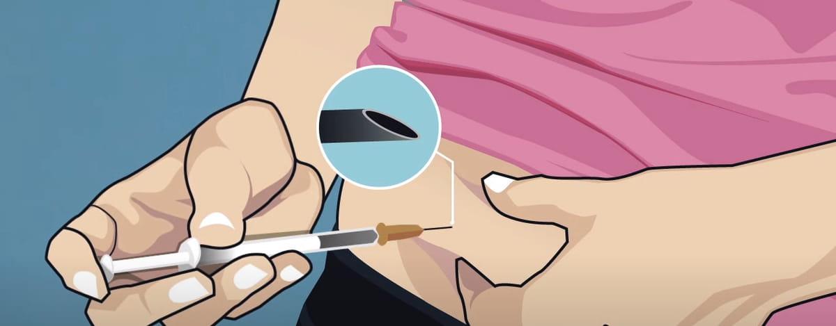 Administración medicación reproducción